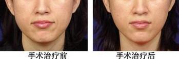 面部提升术的成功案例