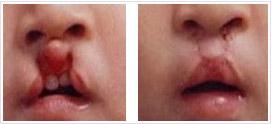 鼻唇腭聯合整復法成功案例