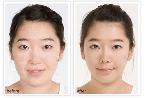 韓式綜合美眼術成功的案例