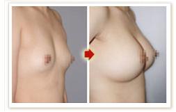 自體脂肪活細胞豐胸的成功案例