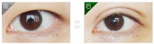 韩式双眼皮成功的案例