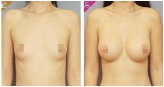 假体隆胸成功的案例