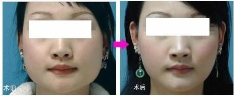 修复下颌角肥大电动手术成功的案例