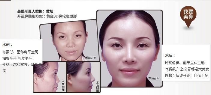 黃金3D鼻輪廓塑形術成功案例