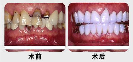 陽光仿生種植牙的成功案例