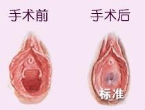 韓式處女膜修復的成功案例