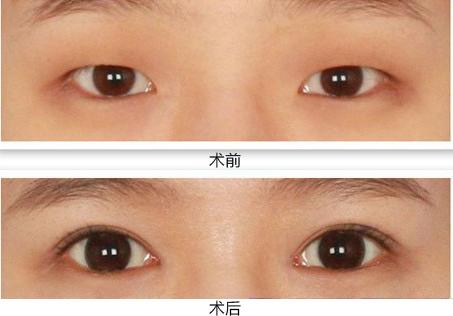 前卫韩式明星双眼皮成功的案例
