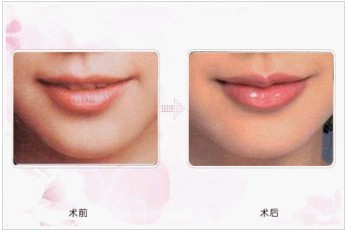 自体脂肪活细胞丰唇术的成功案例