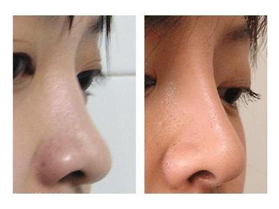 韩式微创鼻子整形