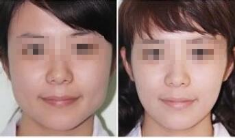 V型瘦脸术