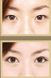 巧致魅力双眼皮
