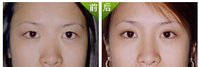 韓式美瞳眼擴大術