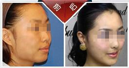 韓式正頜美容術