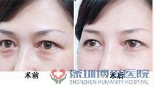 超脈沖激光祛眼袋