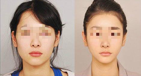 郑州153无痕改脸型