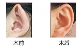 郑州153招风耳矫正手术
