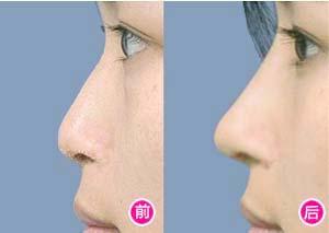 郑州153黄金3D鼻轮廓塑形术