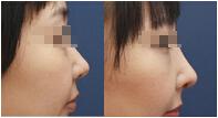 韓式隆鼻術