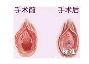 口述处女膜重建术的真实案例