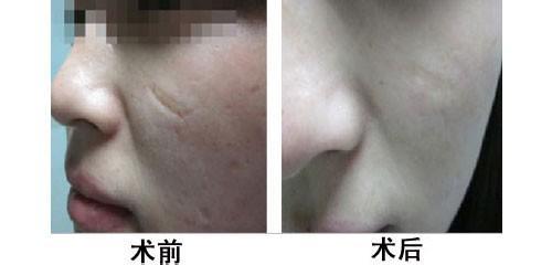 口述疤痕修复术的真实案例