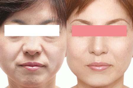 自体脂肪移植除皱术的真实案例