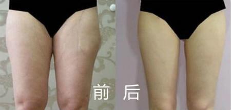 网友体验mm3分层立体吸脂的成功案例