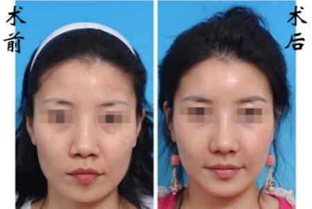 网友体验CK立体隆鼻的成功案例