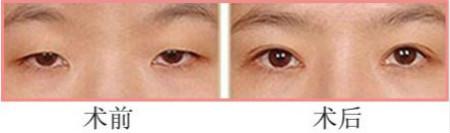 网友体验伊莱美1um无痕双眼皮的成功案例