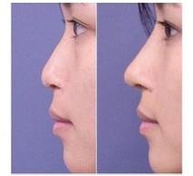口述CC鼻部塑形的真实案例