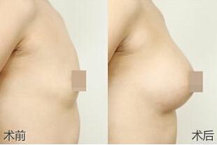 自体脂肪隆胸成功的真实案例