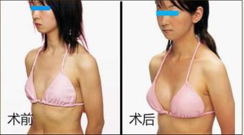 网友口述五邑隆胸术的成功案例