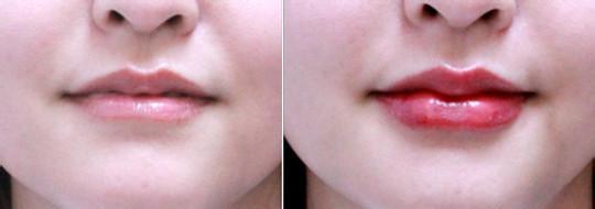 口述自体脂肪唇珠成形术的真实案例
