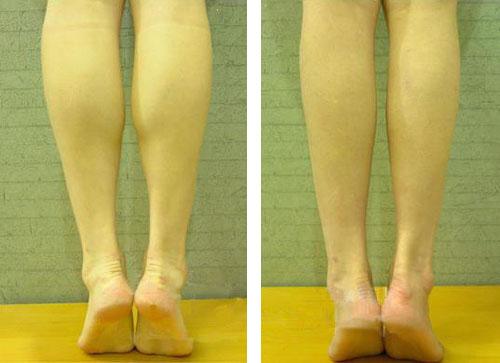 口述微创瘦小腿的真实案例