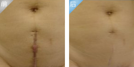 口述华尔综合美肤祛疤的真实案例