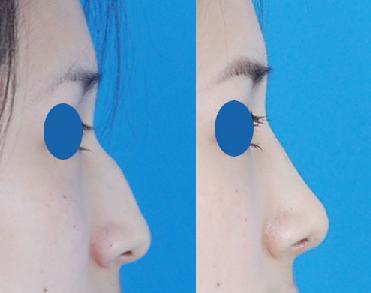 口述耳软骨隆鼻的真实案例