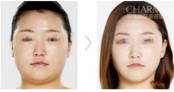 網友體驗精致改臉型的成功案例
