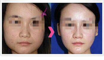 网友口述黄岩面部轮廓手术颌面改脸型的成功案例
