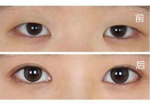 口述美莱韩式双眼皮的成功案例