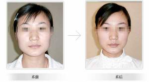 口述华美韩国改脸型的成功案例