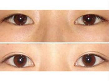 網友體驗雙眼皮成形手術的成功案例