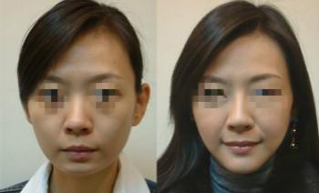 網友體驗頜面部整形術的成功案例