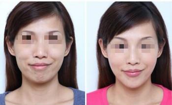 網友體驗微創除皺術的成功案例
