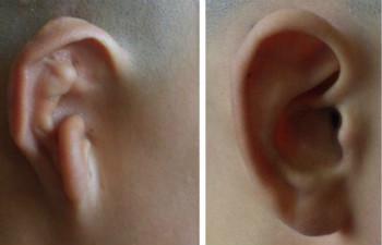 網友體驗全耳再造術的成功案例