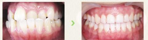 口述PBS智能美牙系統的成功案例