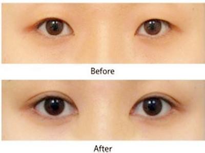 口述SE眼部綜合整形的成功案例