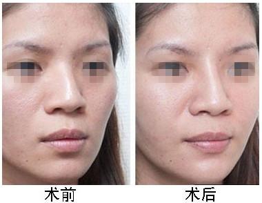 口述PPC綜合隆鼻的成功案例