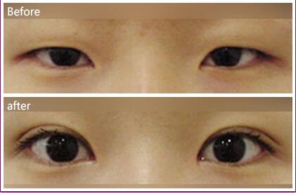口述睛彩眼部整形的真实案例
