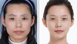 口述时光精细数字化改脸型的真实案例