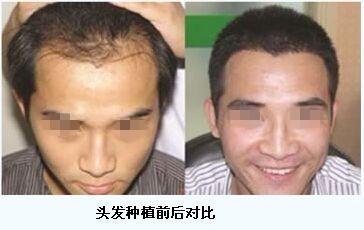 网友体验第四代韩式FUE毛发无痕移植技术的成功案例