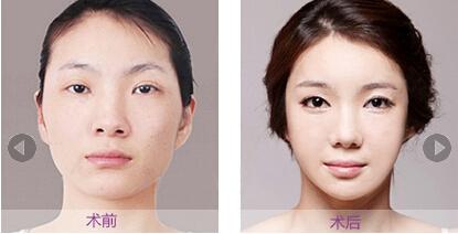 第五代纯韩精微改脸型成功案例